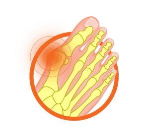 Пример за кокалче на крака