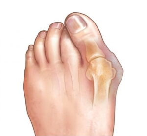 пример за бунион на крака